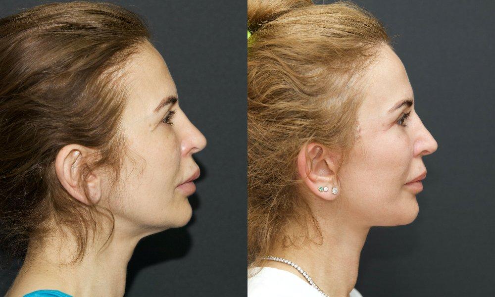 lifting facial_001.1