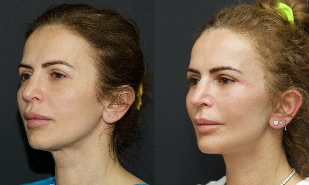 lifting facial_001.4