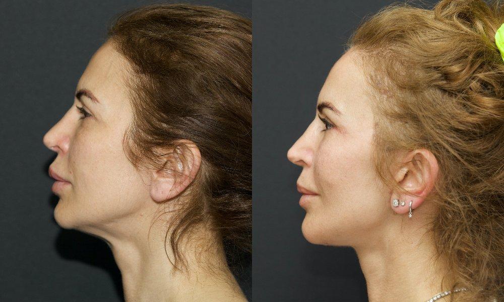 lifting facial_001.5