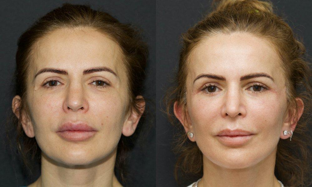 lifting facial_001.6