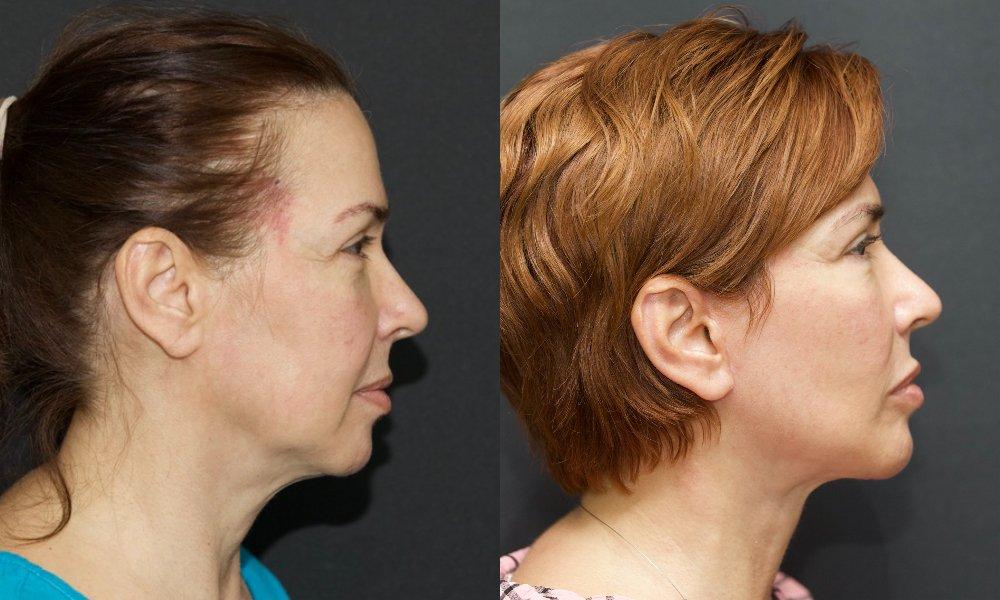 lifting facial_003.1