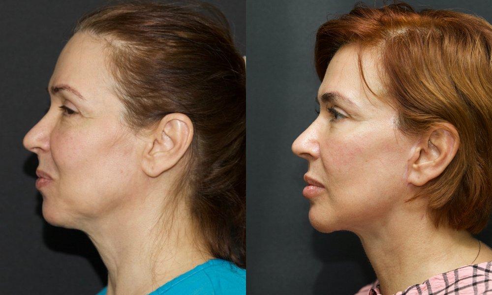 lifting facial_003.5